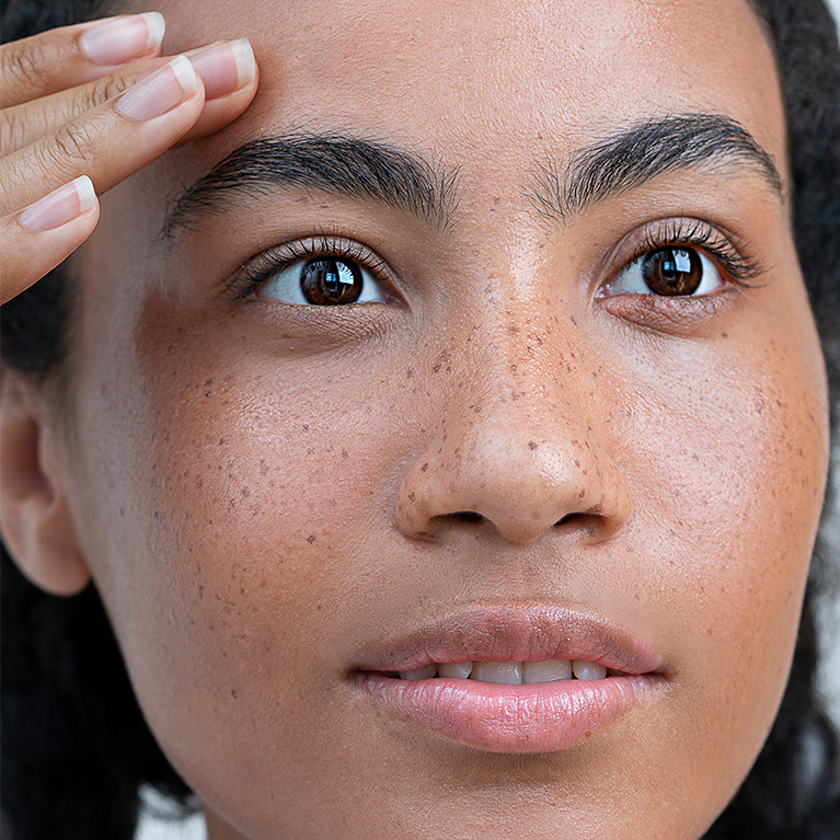 Common Causes of Hyperpigmentation