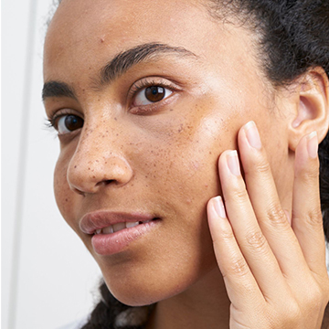 The Different Types of Hyperpigmentation